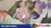 মৌলভীবাজারে এক পেট নিয়ে দুই কন্যাশিশুর জন্ম